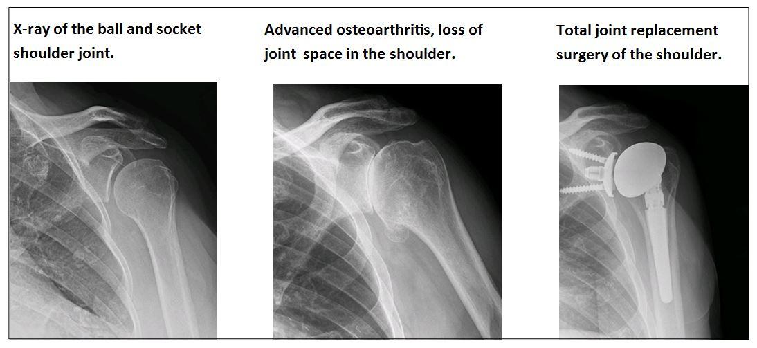 Osteoarthritis Of The Shoulder Missoula Bone Joint